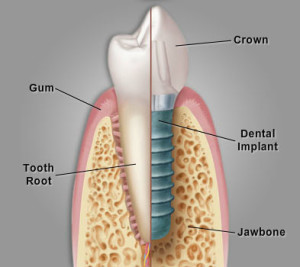 Dental Implant Image (2)