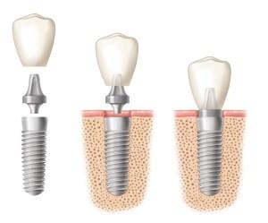 dental implants image 5