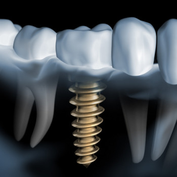 Dental implants and diet