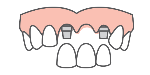 a bridge of dental implant tooth replacement